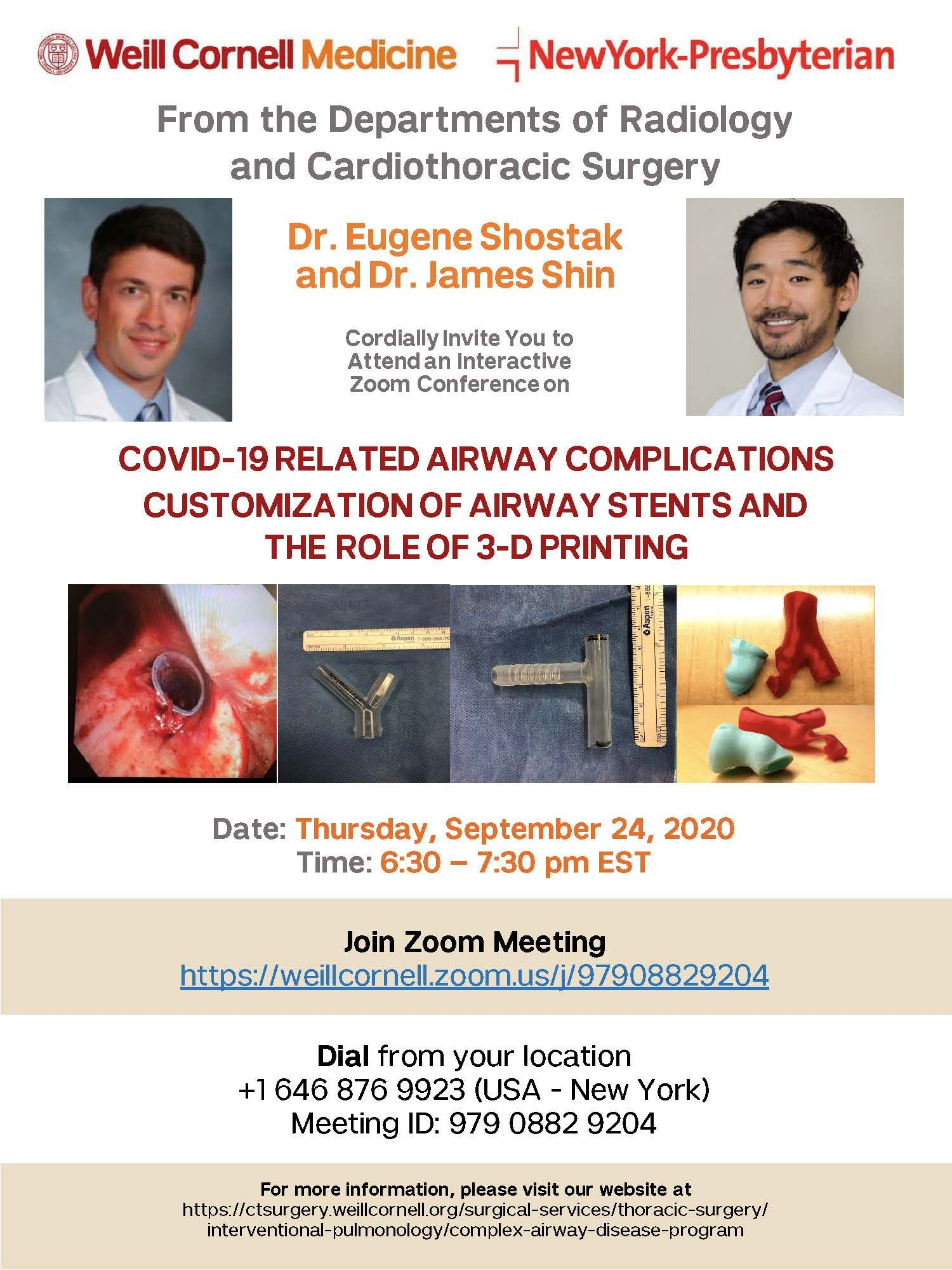 COVID-19 related airway complications customization of airway stents and the roles of 3-d printing