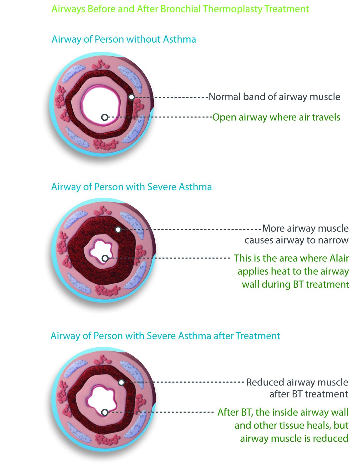 Various cross sections of airways, comparing those with asthma to those without.