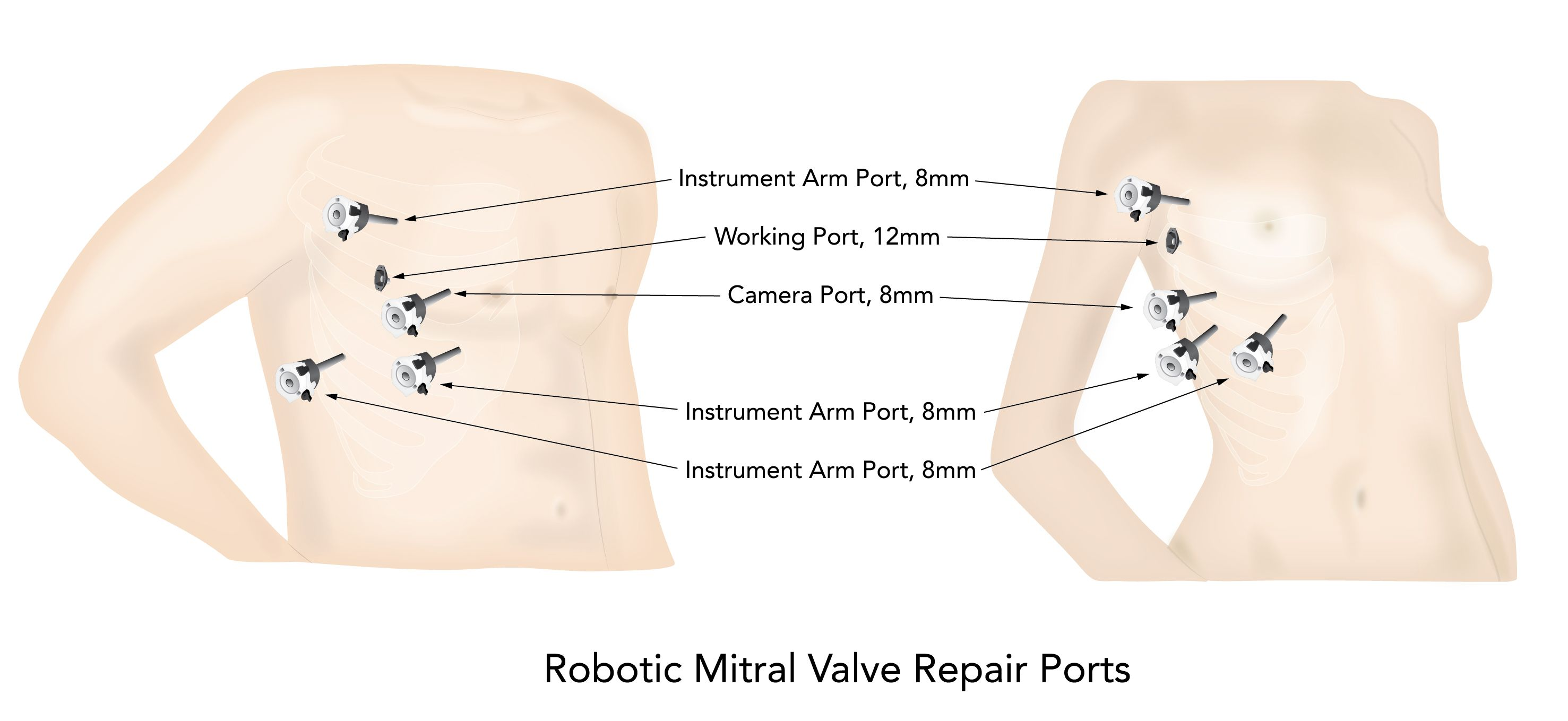 Totally Endoscopic Robotic Mitral Valve Repair